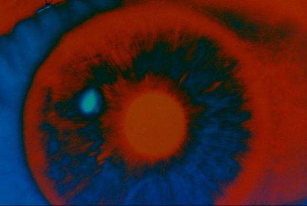 2001 bowman eye